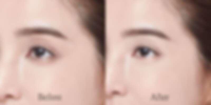 有效改善黑眼圈、眼周暗沈細紋和細疏睫毛
