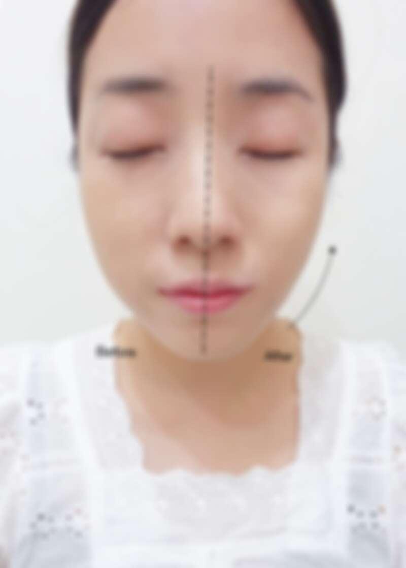 M編實際以小花托腮按摩法測試一邊臉後,臉部線條明顯往上提升,緊實拉提的傳說是真的啊!!!