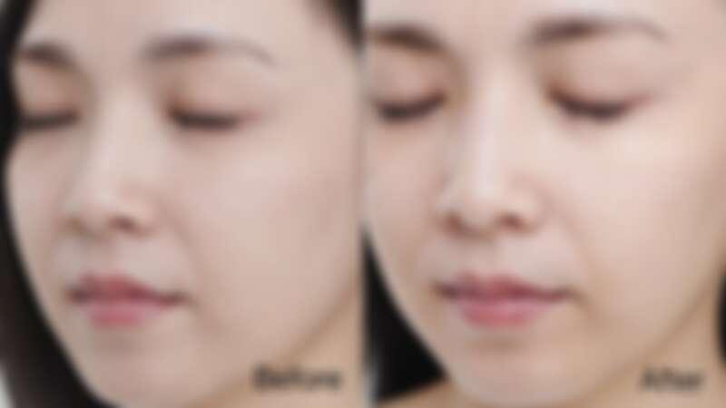 Before:膚色不均、疲態黯沉 / After:白皙透亮,健康光澤