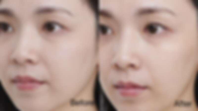 Before:雙下巴明顯,臉周鬆垮 / After:緊實上提,下巴輪廓明顯