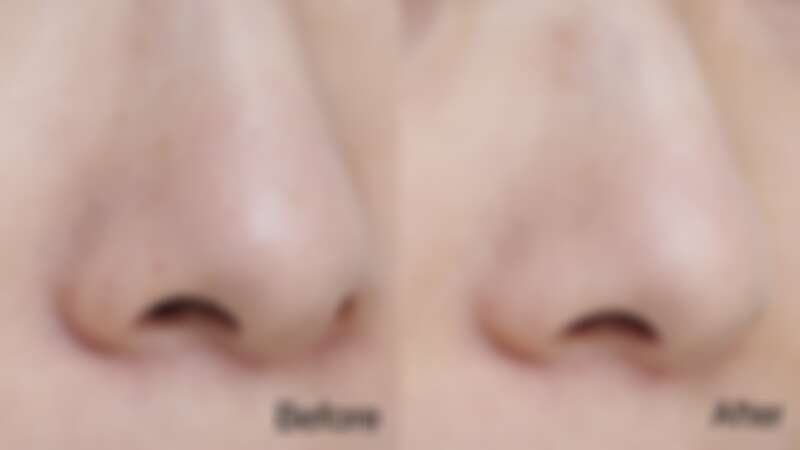 Before:毛孔粗大,粉刺爆量 / After:毛孔潔淨、細緻平滑