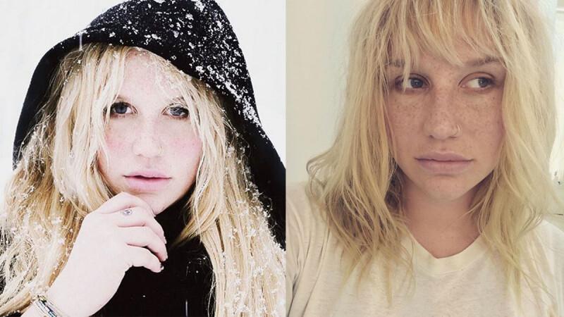 陷入官司纏訟!悪女凱莎(Kesha)心碎痛哭:「當投注心力的一切都被奪走。」
