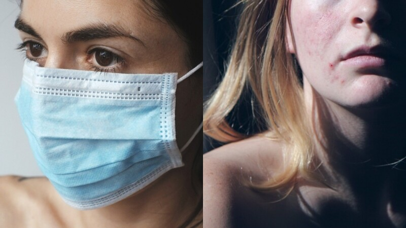 對抗口罩痘痘與粉刺,皮膚科醫師傳授3多3少保養守則,原來複合酸類煥膚精華這麼有用!